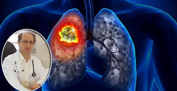 Akciğer sağlığı için 12 madde