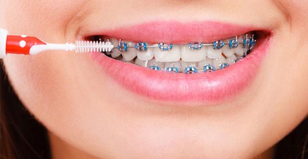 Diş Teli Fiyatları