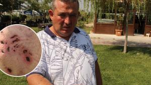 Kaldığı otelde pitbull dehşeti yaşadı